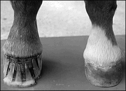 Glue on shoe extension can correct contracted tendons